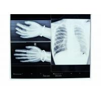 China Konida Medical Dry Film High Resolution Heat Resisting Imaging on sale