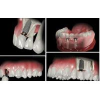 Screw Retained Dental Implant Crown And Bridge For Dental Lab / Hospital Dental Clinic