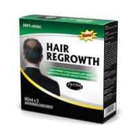 Natural Hair Regrowth Product Spray For Men From Chinese