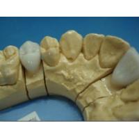 Wholesale Dental E.max Crown from china suppliers