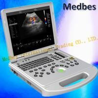 Wholesale Medical Device Laptop Scanner Equipment Portable Color Doppler Ultrasound from china suppliers