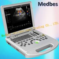 Wholesale Ce Hospital Equipment Medical Diagnostic Ultrasounic Machine Digital Laptop Ultrasound from china suppliers