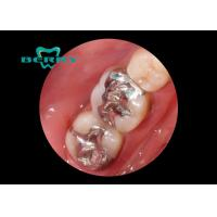 Buy cheap White Gold Alloy Dental Inlays Distinguished Biocompatible Tough from Wholesalers