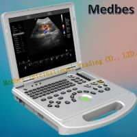 Wholesale Cardiac 4D Color Doppler Echo Ultrasound Machine with Pw Cw from china suppliers