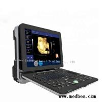 Wholesale Hot Color Doppler Ultrasound Diagnosis System from china suppliers