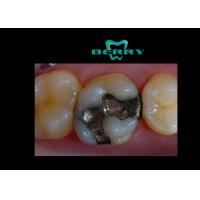 Buy cheap High Grade Cobalt and Chromium Alloy Inlays For Teeth , Composite Inlays from Wholesalers