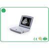 Fully Digital B Mode Ultrasound Scanner Intelligent TGC Control For Pregnancy