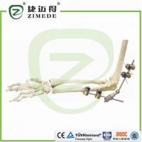 Wholesale Elbow External Fixator from china suppliers