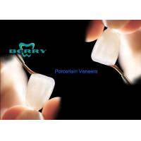 Buy cheap Commonest Porcelain Dental Veneers With Treatments Crowns from wholesalers