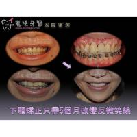 Wholesale Teeth Correction from china suppliers