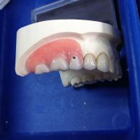 MK1 Attachment Denture Work